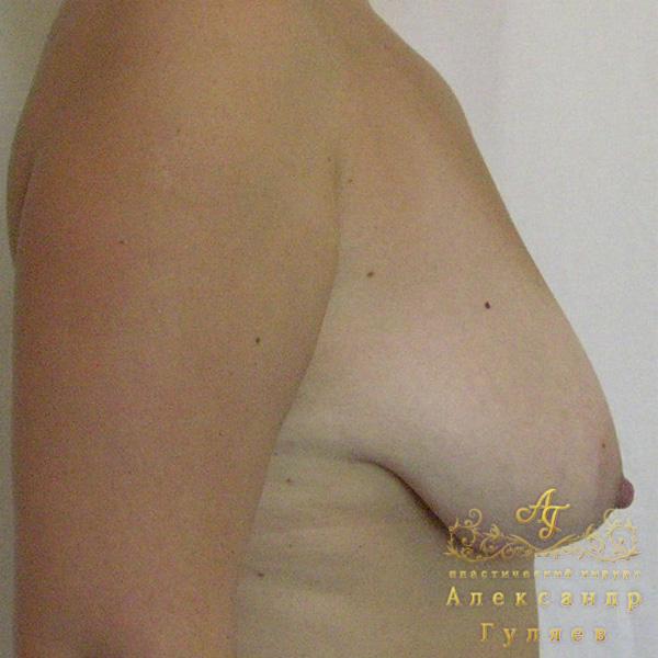 Увеличение одной груди и боль в ней