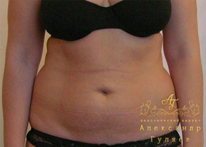 Кесарево сечение и диета после операции