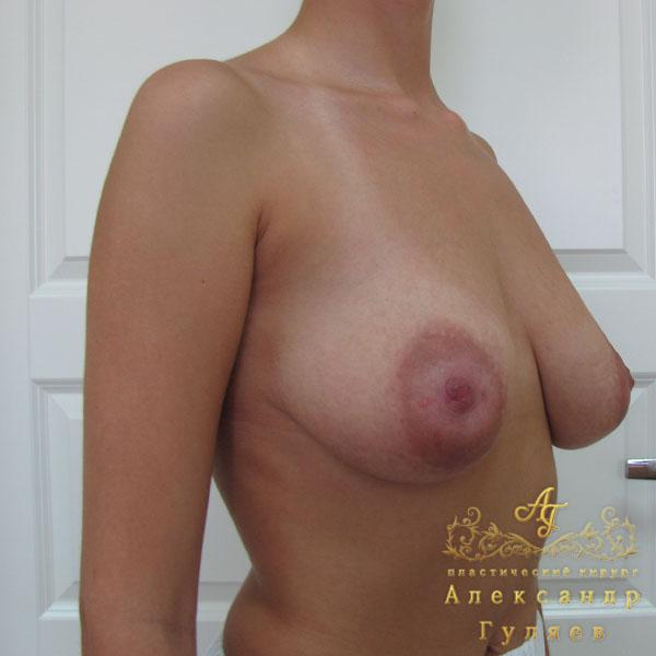 Крем депилятор для груди